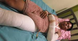 injuredbed